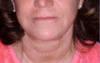 Extreme filler a.k.a liquid facelift