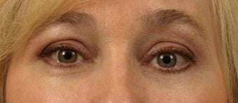 Lower Eyelid/Tear-Trough Restyalne