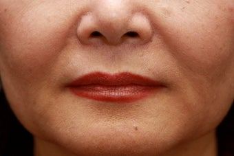 Fill the nasolabial folds and marionette lines