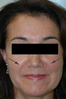 Restylane treatment for laugh lines
