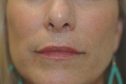 Restylane Treatment for lips