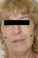 Restylane injections for laugh lines