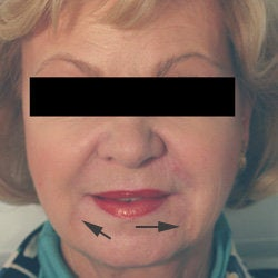 Oral Commissures (marionette lines) with Restylane Treatment