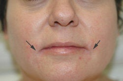 Restylane and Botox for mouth rejuvenation