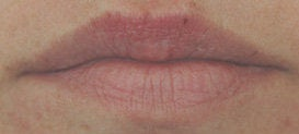 Lip enhancement with Restylane