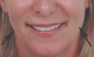 Restylane for cheek augmentation