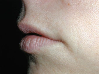 Restylane for upper lip