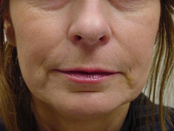 Restylane treatment for marionette lines