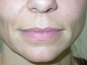 Filler -lip augmentation and smile line treatment