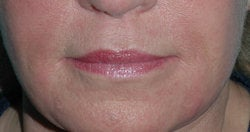 Lip Augmentation with Restylane