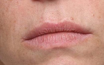 Lip treatment with Restylane®
