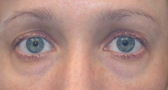 Restylane to tear trough deformity of lower lids
