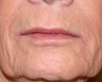 Restylane filler to the lips