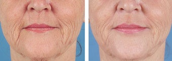 Dermal Filler to Wrinkles