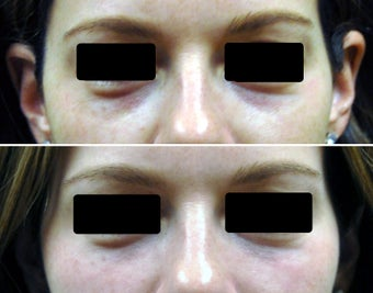Filling of under-eye hollows / tear troughs with hyaluronic acid filler