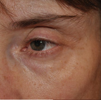 Restylane Injection into the Tear Troughs