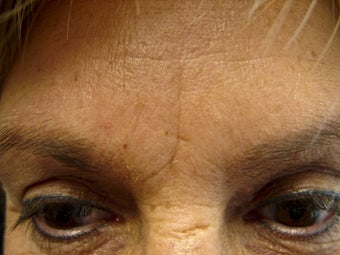 Immediate Improvement of a Forehead Wrinkle