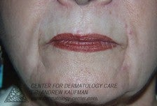Dermal Filler Injection to Marionette and Accessory Smile Lines