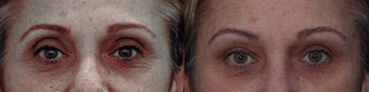 Upper eyelid filler with restylane