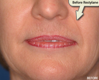 Restylane FIller Augmentation of the Nasolabial Folds