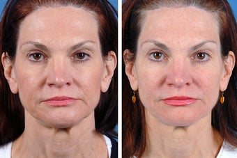 Fillers and Botox Cosmetic