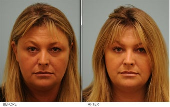 Restylane and Short Term Botox