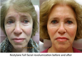 Restylane full facial rejuvenation