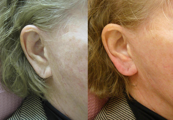 Restylane Ear Rejuvenation