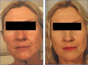 Restylane for Laugh Lines Before and After Photo