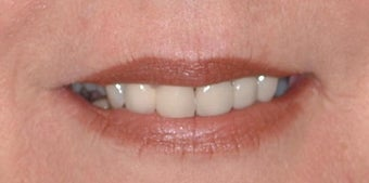 Smokers lines treated with Restylane and Botox in lips