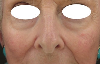 Midface, Cheeks, Tear troughs, and Nasolabial folds treated Restylane and Radiesse