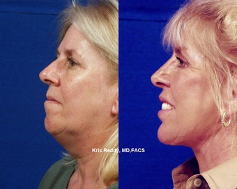 Restylane  with Facelift, Rhinoplasty, and Laser Resurfacing