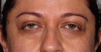 Undereye Filler Injection
