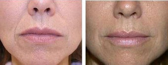 Restylane for nasal labial folds