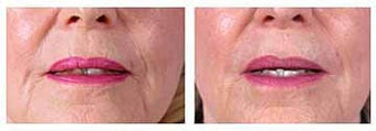 Restylane for wrinkles and marionette lines