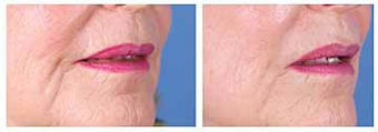 Restylane for nasolabial folds and marionette lines