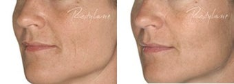 Before and after Restylane on fine lines