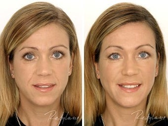 Before and after restylane full face