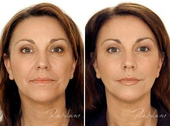 Restylane Full Face Treatment