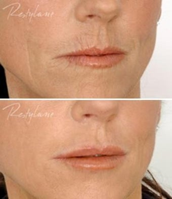 Restylane Lip Definition Before After
