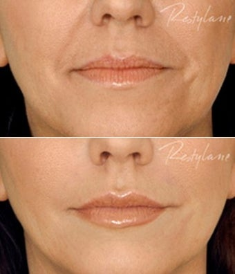 Restylane Lips Wrinkles Before After