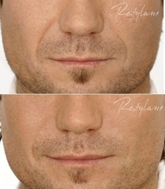 Restylane Male Nasolabial Folds Before After