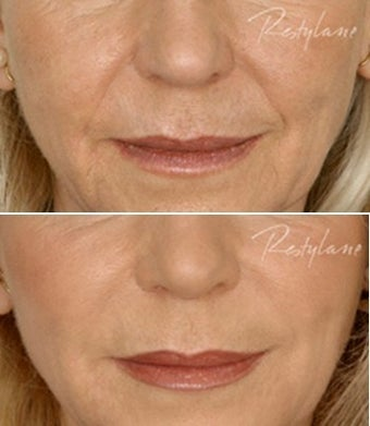 Restylane Nasolabial Folds Before After