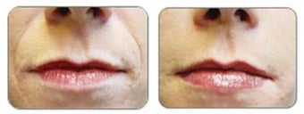Before and after Restylane around mouth