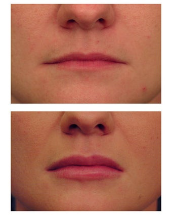 Restylane for lip augmentation