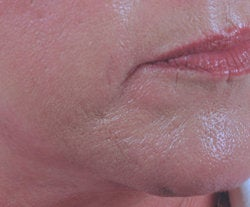 Chin rejuvenation