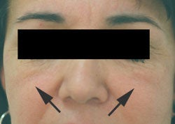 Restylane injections for cheek augmentation