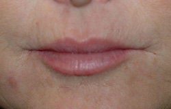 Restylane injections for upper lip lines