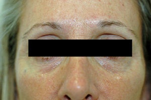 Restylane for dark circles under the eyes
