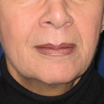 Restylane Treatment for Lips and Nasolabial Folds